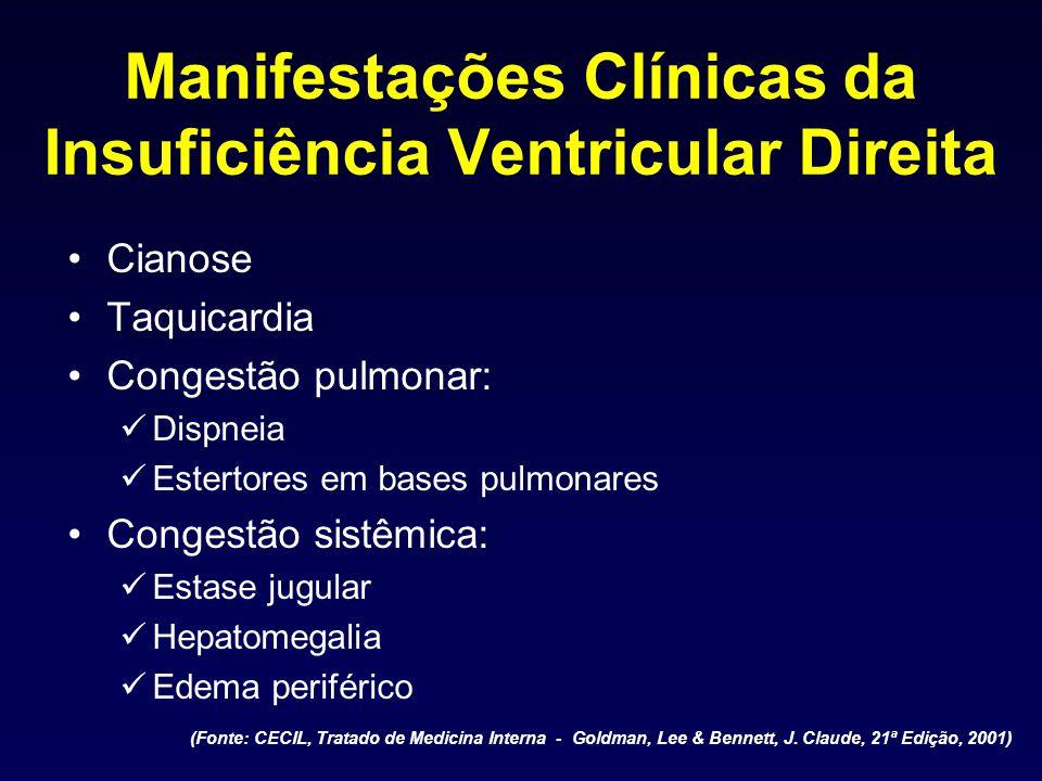 Manifestações Clínicas da Insuficiência Ventricular Direita Cianose Taquicardia Congestão pulmonar: Dispneia Estertores em bases pulmonares Congestão