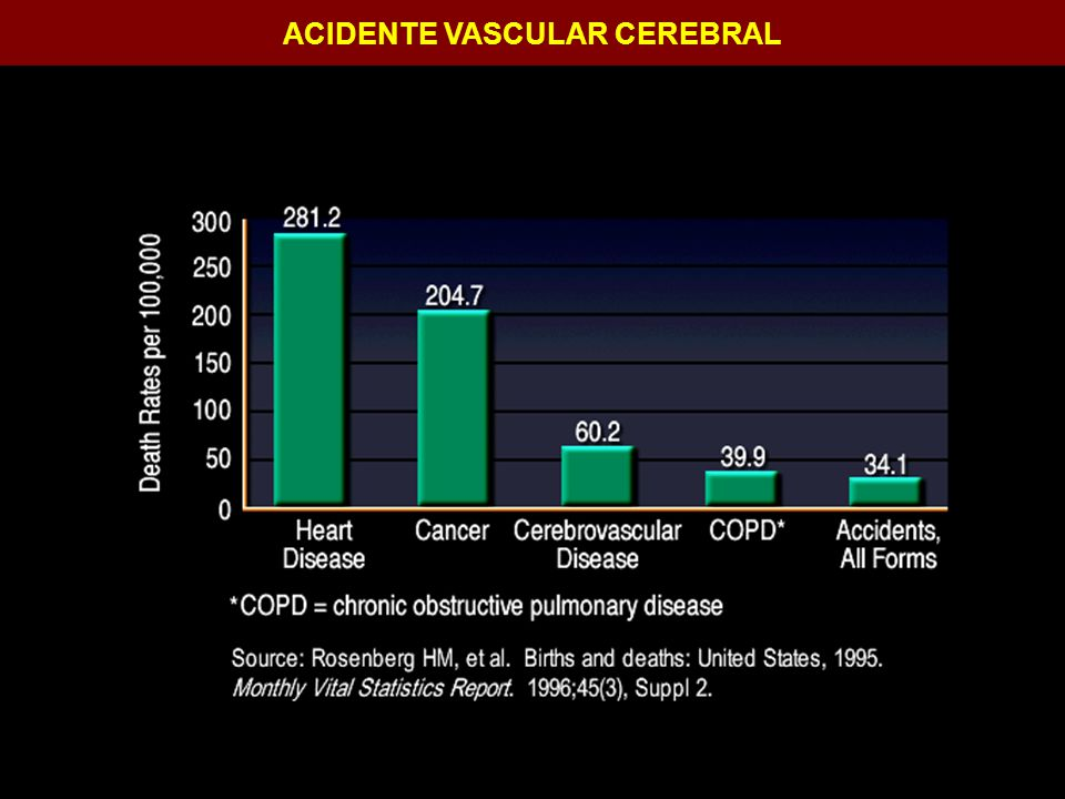 ACIDENTE VASCULAR CEREBRAL Hemicraniectomia descompressiva: –Craniotomia ampla: fronto-temporo-parieto- occiptal –Diâmetro médio de 10,4cm – volume 66,5ml.
