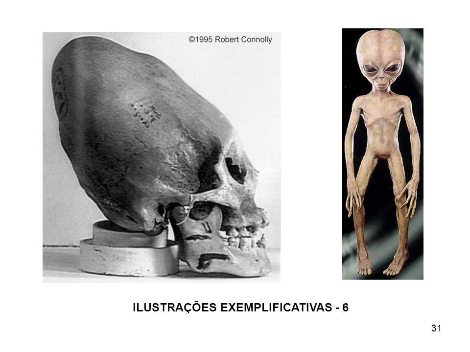 31 ILUSTRAÇÕES EXEMPLIFICATIVAS - 6