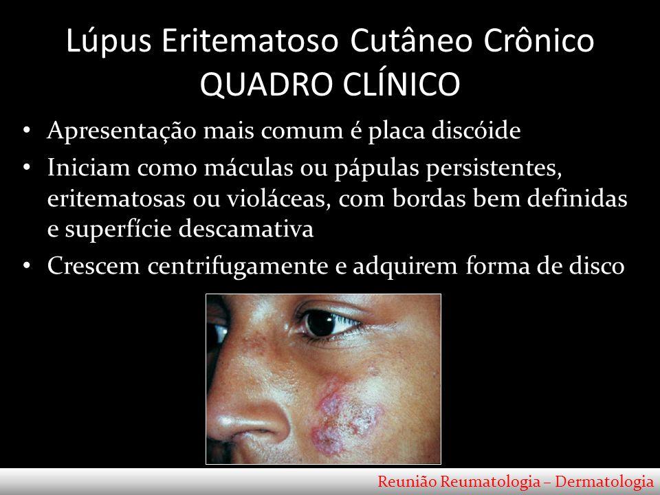 Lúpus Eritematoso Cutâneo Subagudo QUADRO CLÍNICO Localização – Menor frequência: face - < 20% Reunião Reumatologia – Dermatologia