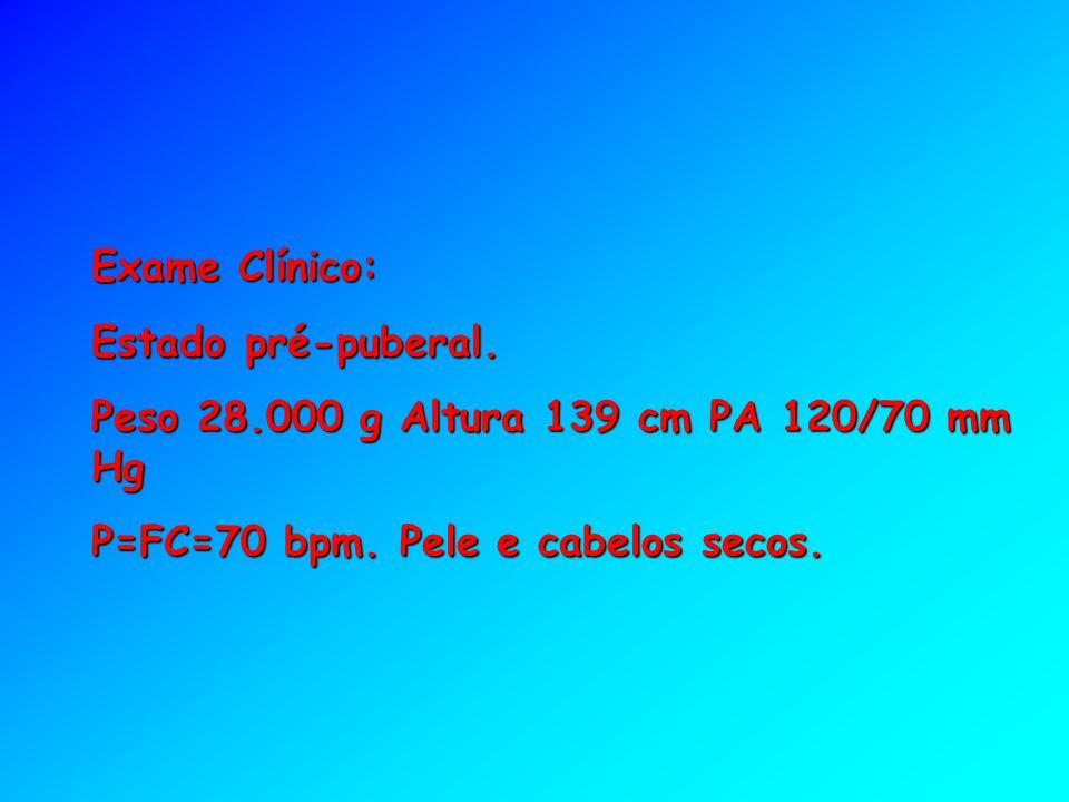 Exame Clínico: Estado pré-puberal. Peso 28.000 g Altura 139 cm PA 120/70 mm Hg P=FC=70 bpm. Pele e cabelos secos.