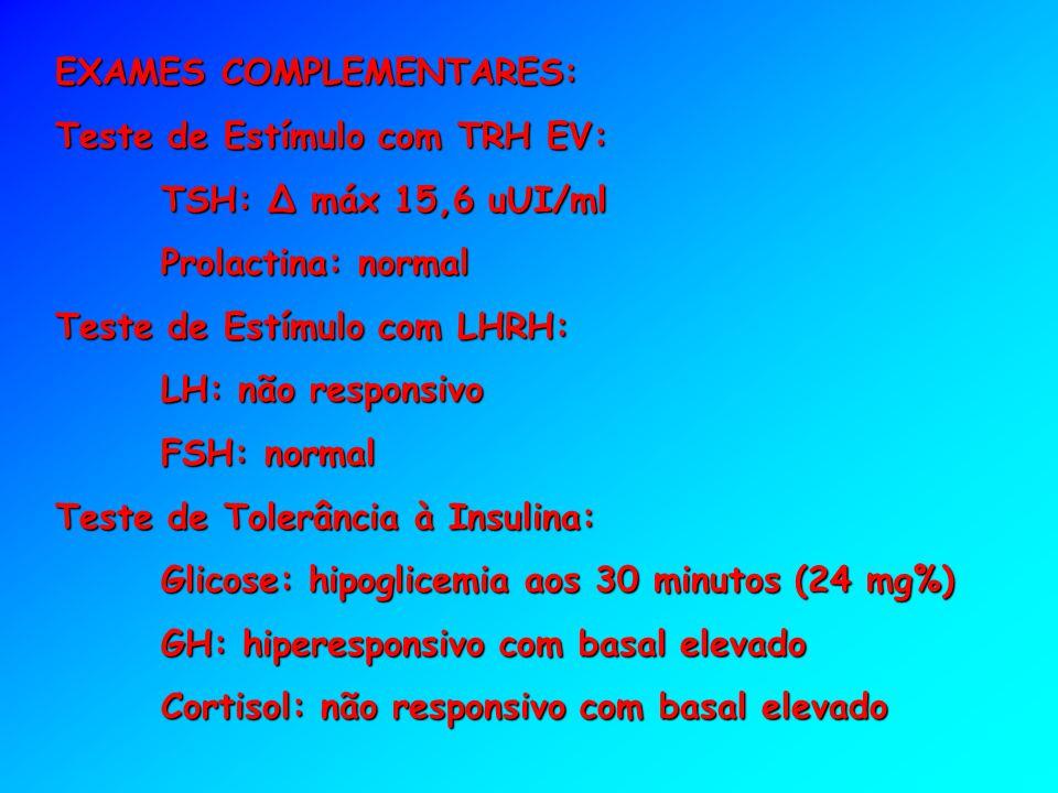 EXAMES COMPLEMENTARES: Teste de Estímulo com TRH EV: TSH: Δ máx 15,6 uUI/ml Prolactina: normal Teste de Estímulo com LHRH: LH: não responsivo FSH: nor