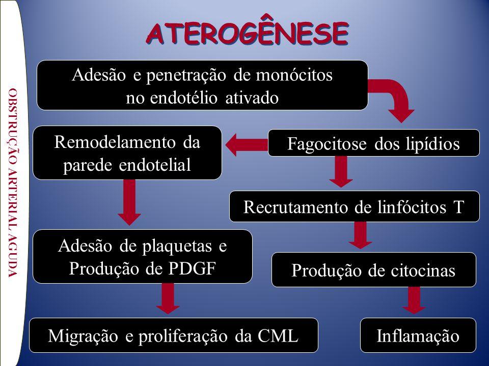 ATEROGÊNESE OBSTRUÇÃO ARTERIAL AGUDA Adesão e penetração de monócitos no endotélio ativado Produção de citocinas Adesão de plaquetas e Produção de PDGF Recrutamento de linfócitos T Fagocitose dos lipídios Remodelamento da parede endotelial Migração e proliferação da CMLInflamação