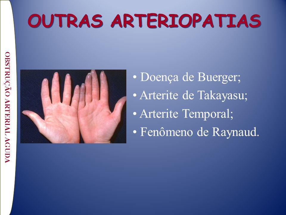 OUTRAS ARTERIOPATIAS Doença de Buerger; Arterite de Takayasu; Arterite Temporal; Fenômeno de Raynaud. OBSTRUÇÃO ARTERIAL AGUDA
