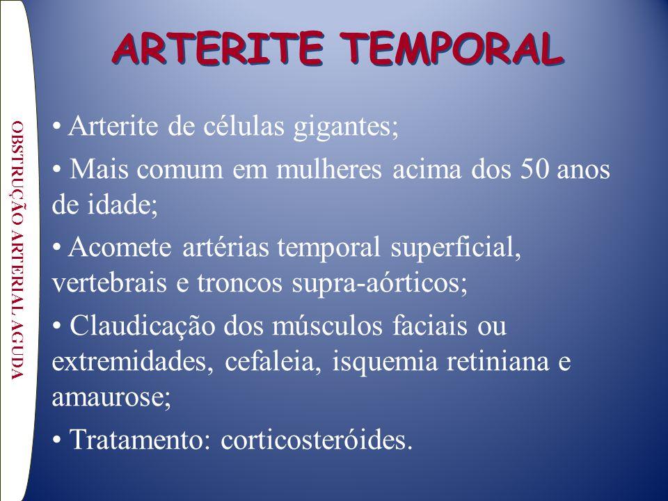 ARTERITE TEMPORAL Arterite de células gigantes; Mais comum em mulheres acima dos 50 anos de idade; Acomete artérias temporal superficial, vertebrais e troncos supra-aórticos; Claudicação dos músculos faciais ou extremidades, cefaleia, isquemia retiniana e amaurose; Tratamento: corticosteróides.