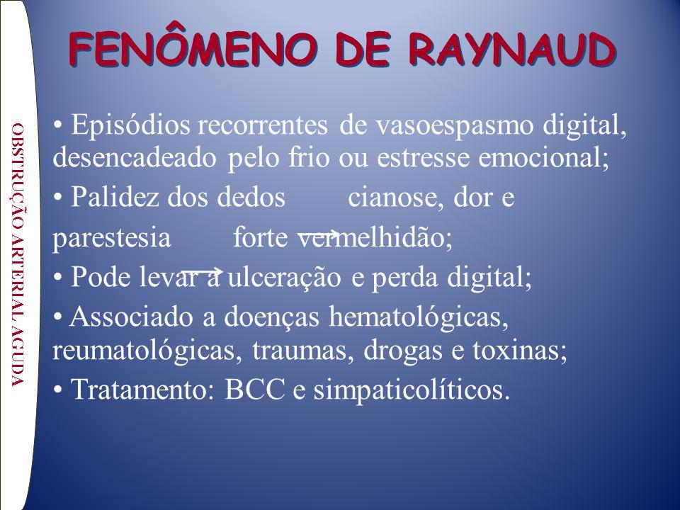 FENÔMENO DE RAYNAUD Episódios recorrentes de vasoespasmo digital, desencadeado pelo frio ou estresse emocional; Palidez dos dedos cianose, dor e pares
