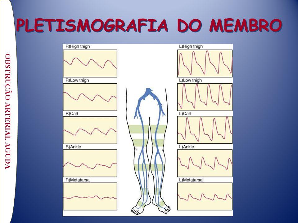 OBSTRUÇÃO ARTERIAL AGUDA PLETISMOGRAFIA DO MEMBRO