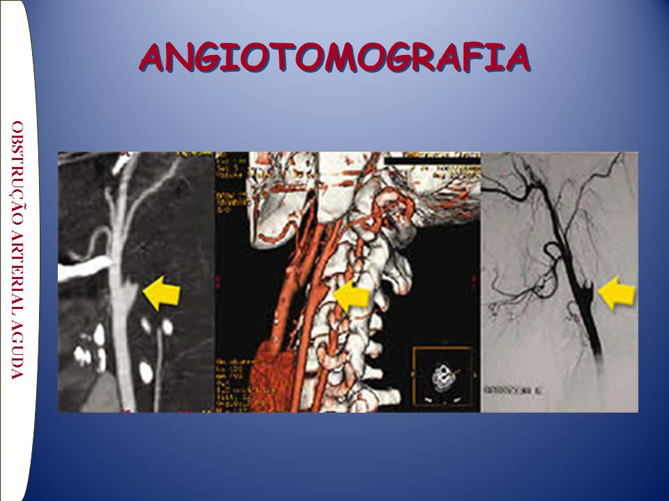 OBSTRUÇÃO ARTERIAL AGUDA ANGIOTOMOGRAFIA