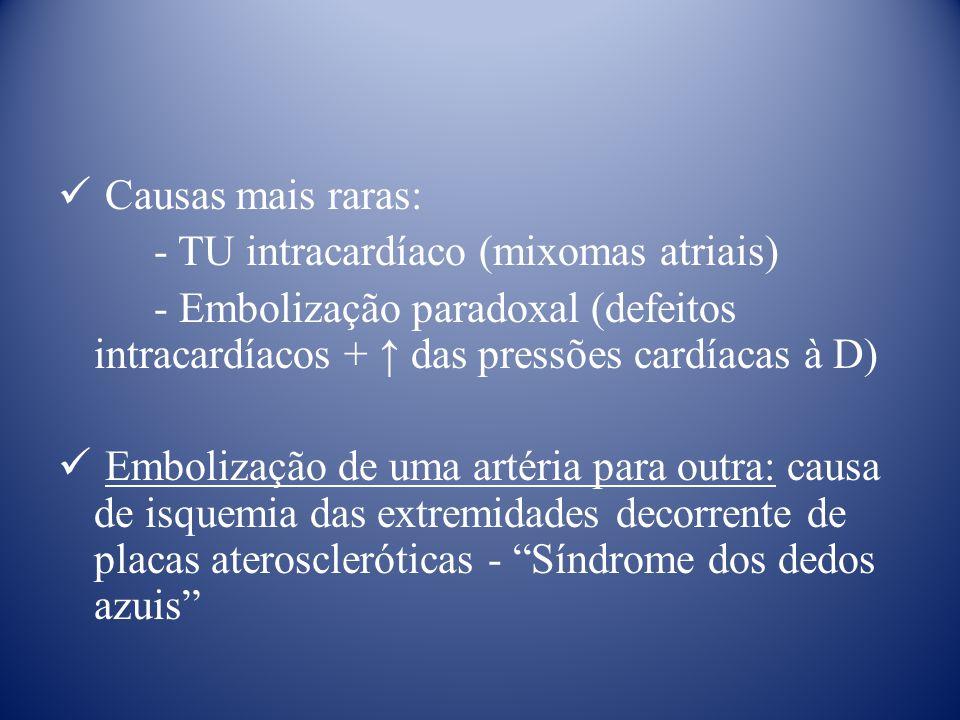 Causas mais raras: - TU intracardíaco (mixomas atriais) - Embolização paradoxal (defeitos intracardíacos + das pressões cardíacas à D) Embolização de uma artéria para outra: causa de isquemia das extremidades decorrente de placas ateroscleróticas - Síndrome dos dedos azuis