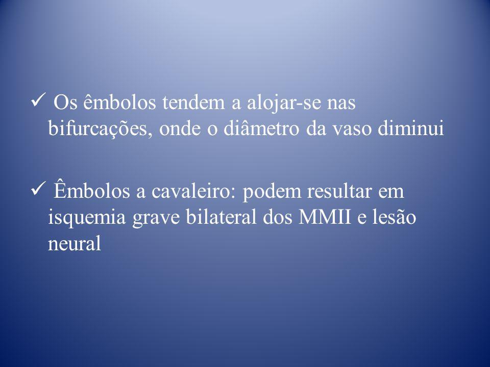 Os êmbolos tendem a alojar-se nas bifurcações, onde o diâmetro da vaso diminui Êmbolos a cavaleiro: podem resultar em isquemia grave bilateral dos MMII e lesão neural