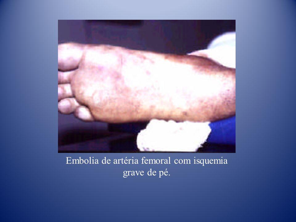 Embolia de artéria femoral com isquemia grave de pé.