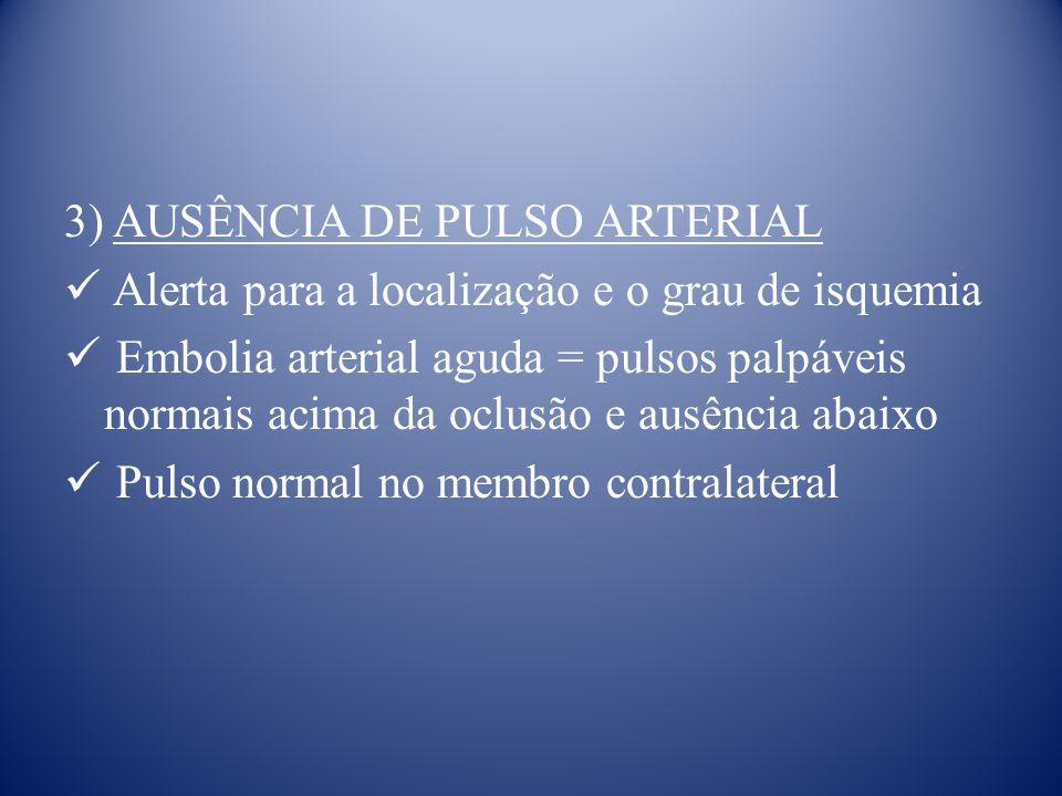 3) AUSÊNCIA DE PULSO ARTERIAL Alerta para a localização e o grau de isquemia Embolia arterial aguda = pulsos palpáveis normais acima da oclusão e ausência abaixo Pulso normal no membro contralateral