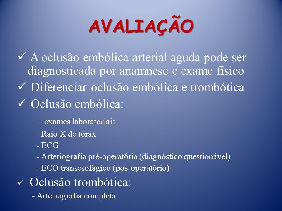 AVALIAÇÃO A oclusão embólica arterial aguda pode ser diagnosticada por anamnese e exame físico Diferenciar oclusão embólica e trombótica Oclusão embólica: - exames laboratoriais - Raio X de tórax - ECG - Arteriografia pré-operatória (diagnóstico questionável) - ECO transesofágico (pós-operatório) Oclusão trombótica: - Arteriografia completa