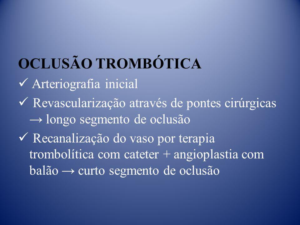 OCLUSÃO TROMBÓTICA Arteriografia inicial Revascularização através de pontes cirúrgicas longo segmento de oclusão Recanalização do vaso por terapia trombolítica com cateter + angioplastia com balão curto segmento de oclusão