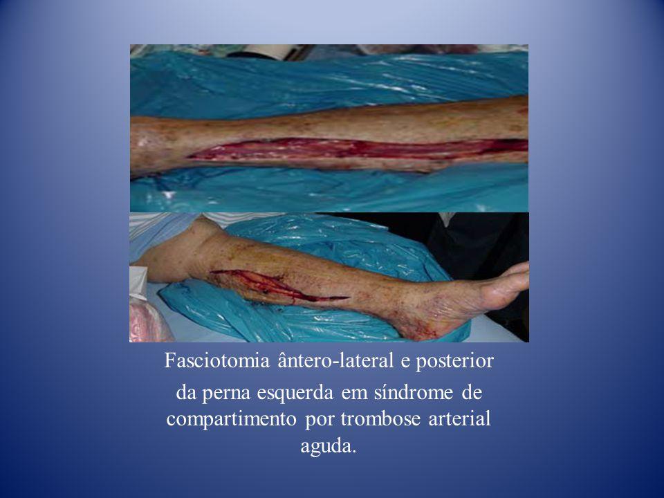 Fasciotomia ântero-lateral e posterior da perna esquerda em síndrome de compartimento por trombose arterial aguda.