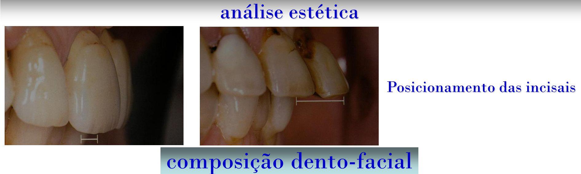 composição dento-facial análise estética Posicionamento das incisais