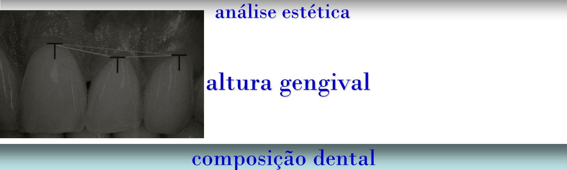 análise estética composição dental altura gengival