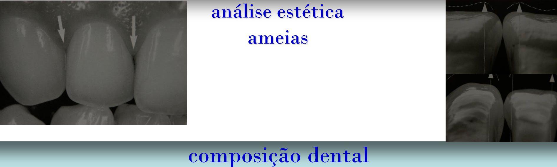 análise estética composição dental ameias