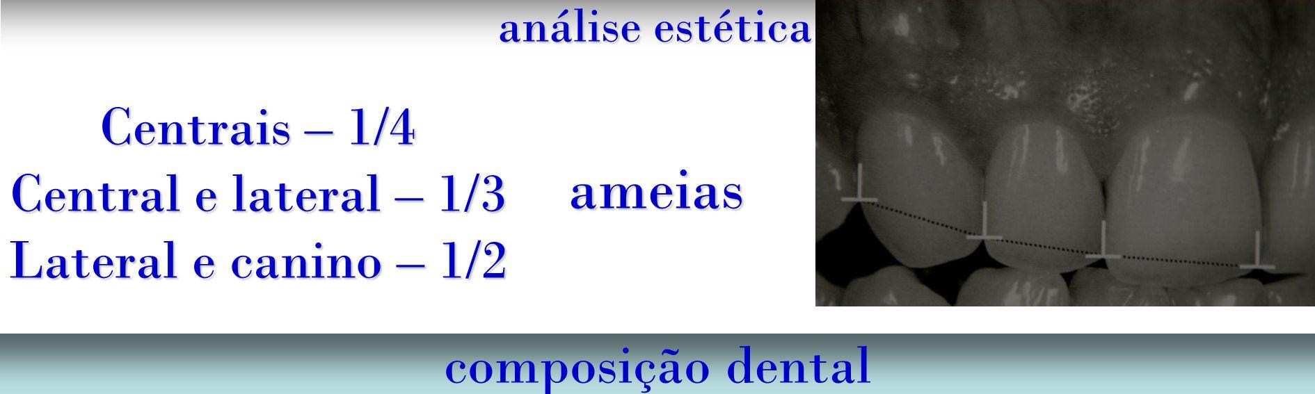 análise estética composição dental ameias Centrais – 1/4 Central e lateral – 1/3 Lateral e canino – 1/2
