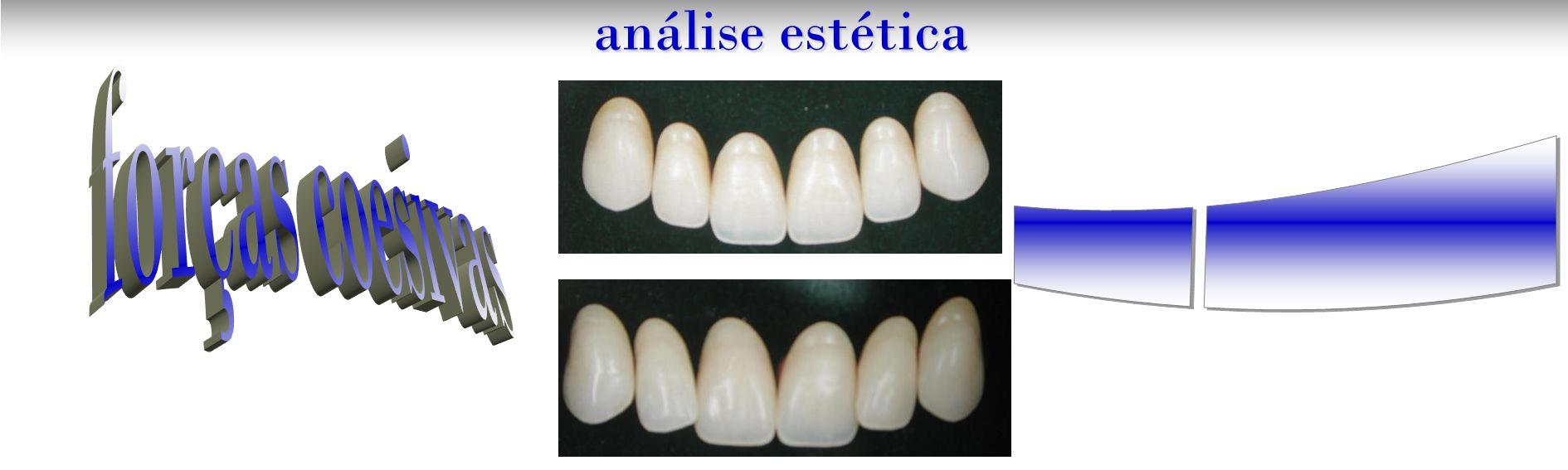 composição dento-facial análise estética Curva incisal