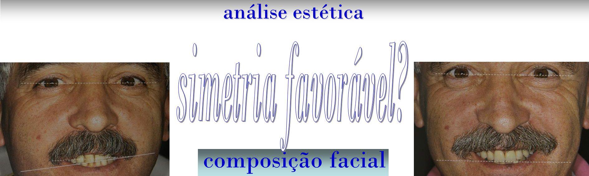 análise estética composição facial