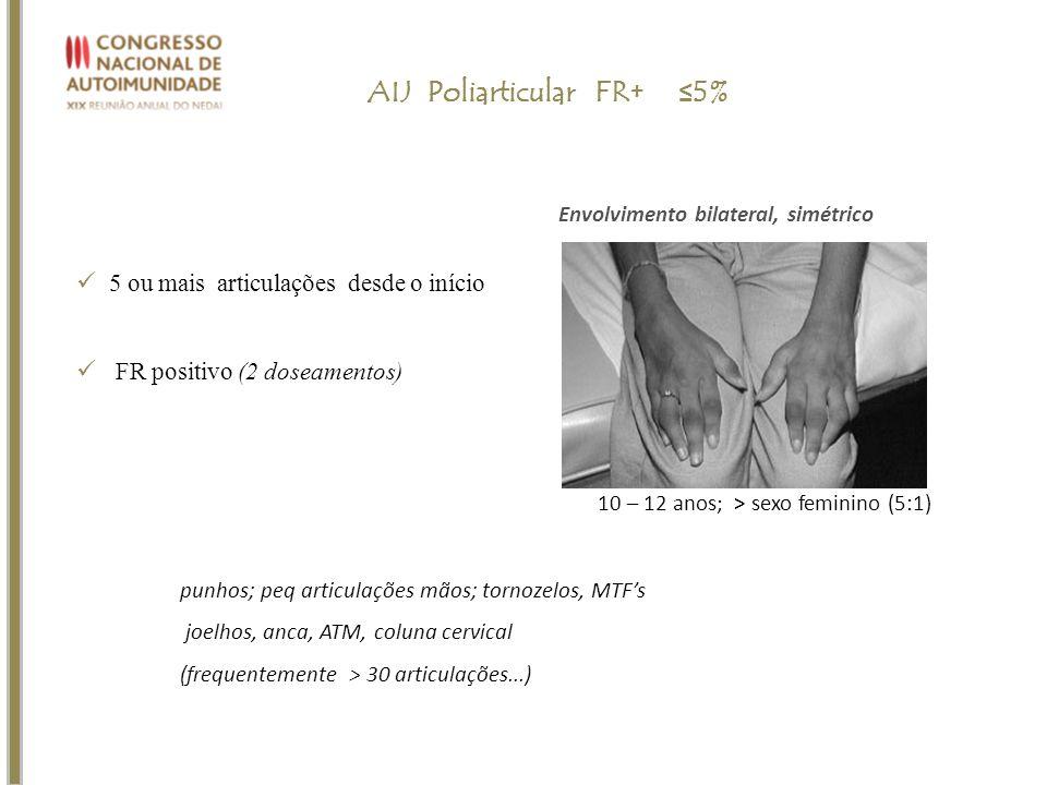 5 ou mais articulações desde o início FR positivo (2 doseamentos) AIJ Poliarticular FR+ 5% punhos; peq articulações mãos; tornozelos, MTFs joelhos, an