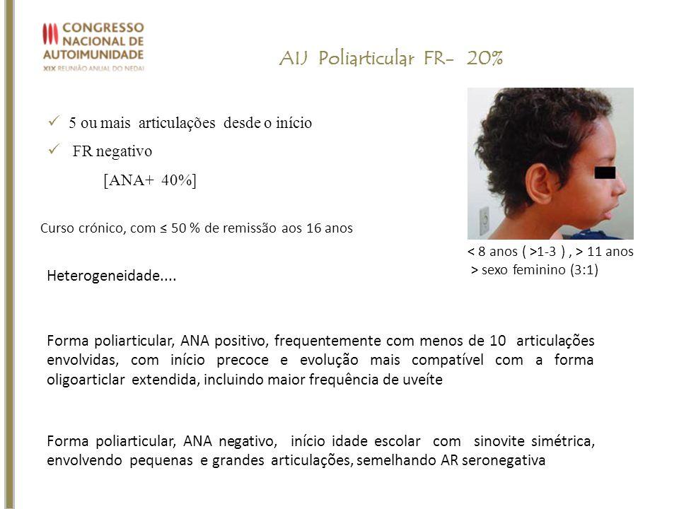 5 ou mais articulações desde o início FR negativo [ANA+ 40%] AIJ Poliarticular FR- 20% 1-3 ), > 11 anos > sexo feminino (3:1) Curso crónico, com 50 %