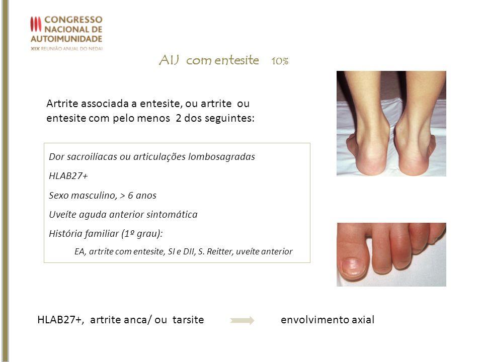 Artrite associada a entesite, ou artrite ou entesite com pelo menos 2 dos seguintes: AIJ com entesite 10% Dor sacroilíacas ou articulações lombosagrad