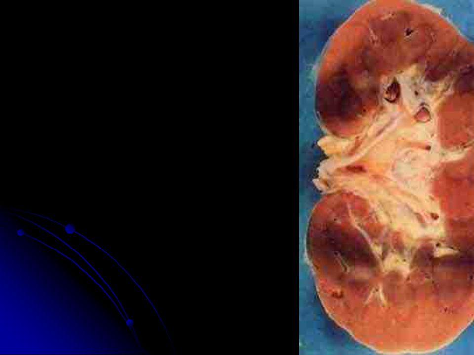 Proximal convoluted tubule Capsule space Efferent arteriole Pedicel Podocyte Endothelium of glomerulus Afferent arteriole Juxtaglomerular cell Parietal layer of glomerular capsule Estrutura da Cápsula de Bowman (glomerular)