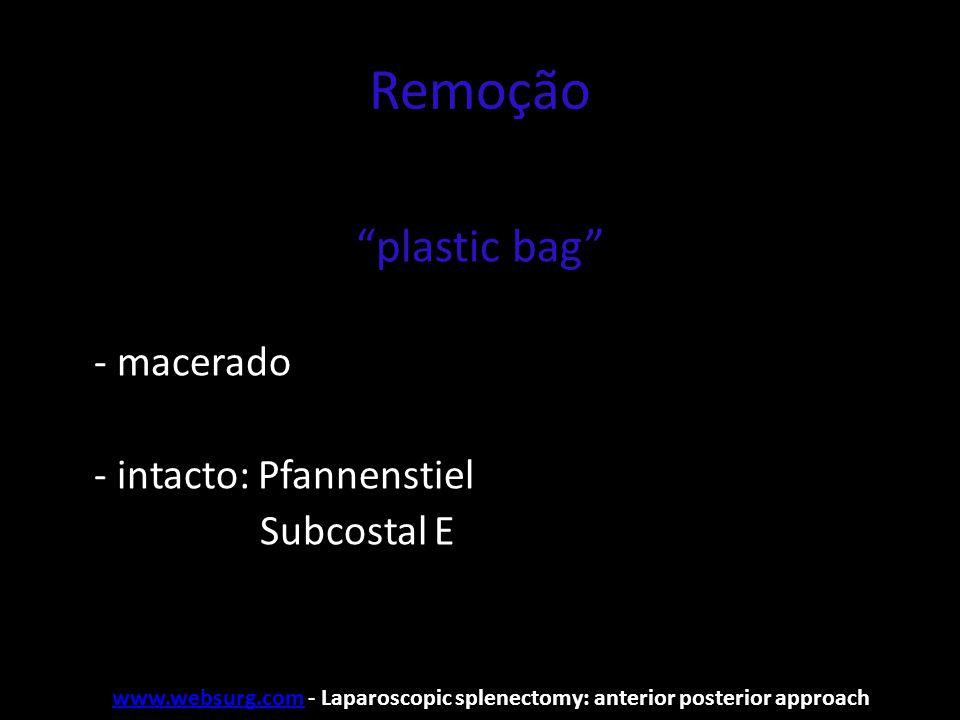 Remoção plastic bag - macerado - intacto: Pfannenstiel Subcostal E www.websurg.comwww.websurg.com - Laparoscopic splenectomy: anterior posterior appro