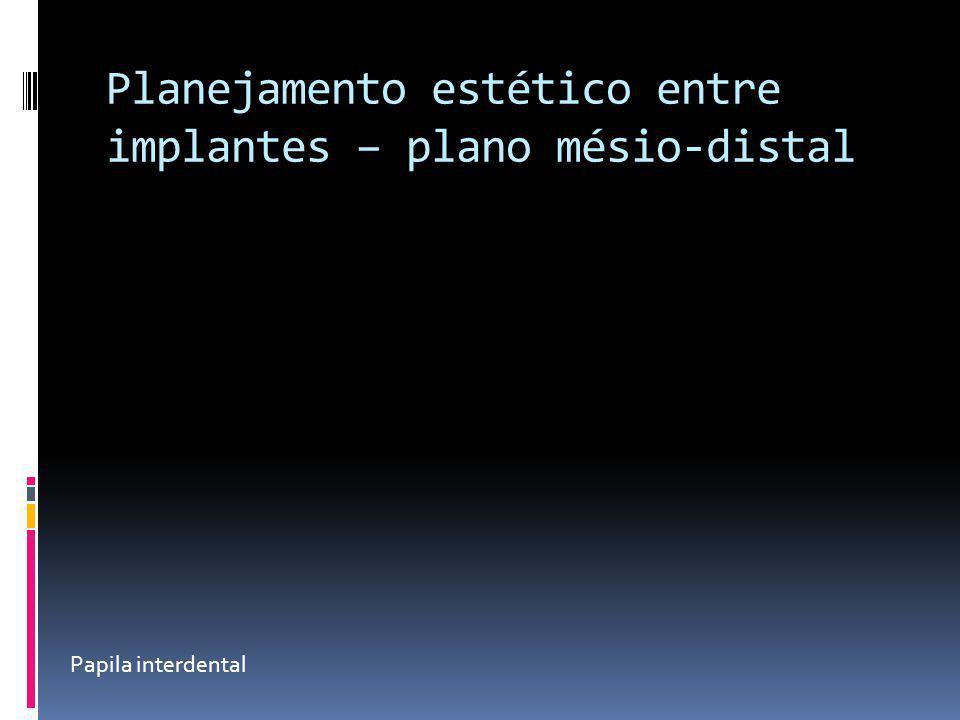 Planejamento estético entre implantes – plano mésio-distal Papila interdental