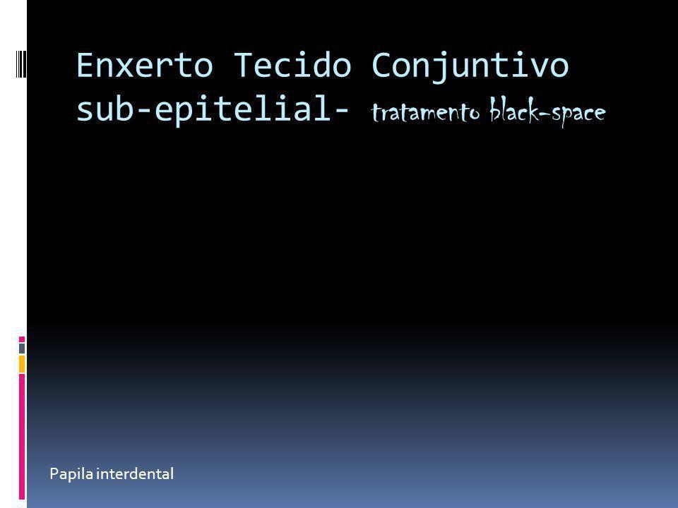 Enxerto Tecido Conjuntivo sub-epitelial- tratamento black-space Papila interdental