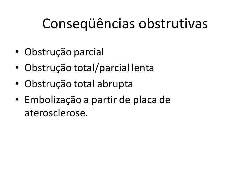 Conseqüências obstrutivas Obstrução parcial Obstrução total/parcial lenta Obstrução total abrupta Embolização a partir de placa de aterosclerose.