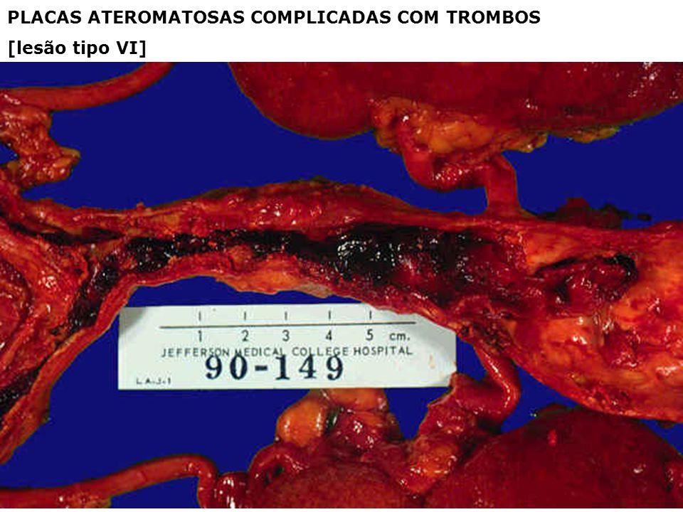PLACAS ATEROMATOSAS COMPLICADAS COM TROMBOS [lesão tipo VI]