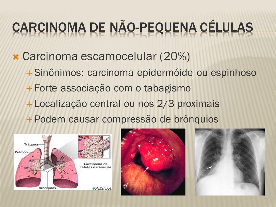 Carcinoma escamocelular (20%) Sinônimos: carcinoma epidermóide ou espinhoso Forte associação com o tabagismo Localização central ou nos 2/3 proximais Podem causar compressão de brônquios