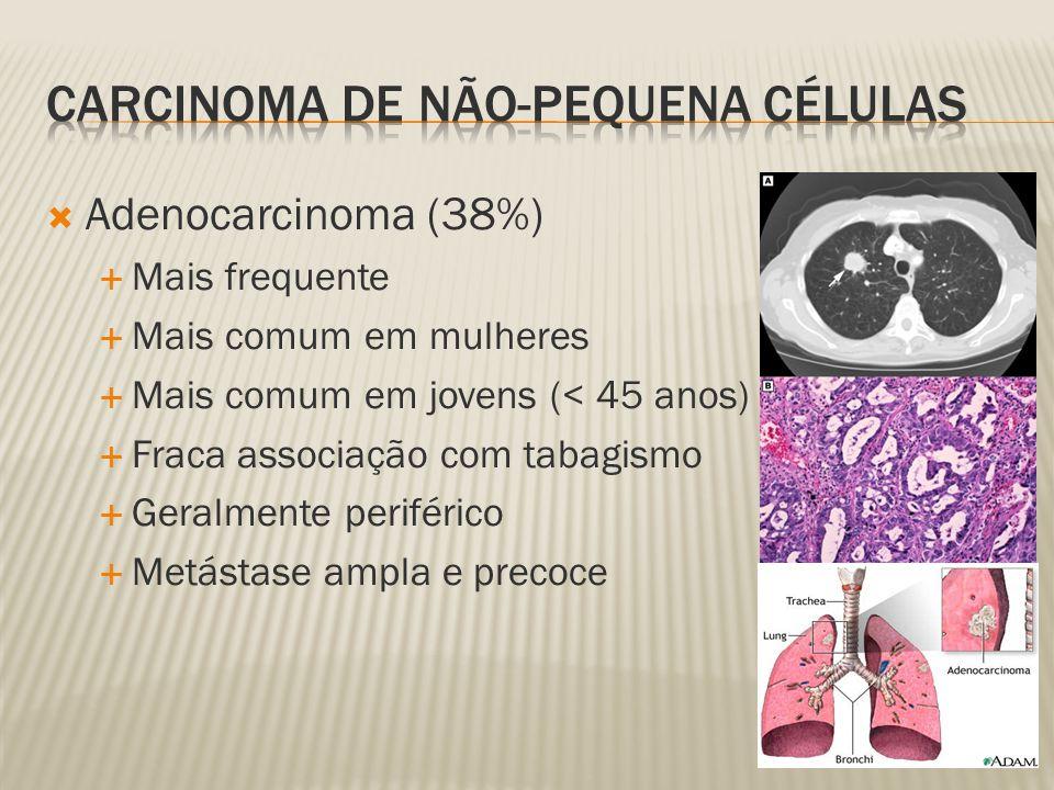 Adenocarcinoma (38%) Mais frequente Mais comum em mulheres Mais comum em jovens (< 45 anos) Fraca associação com tabagismo Geralmente periférico Metástase ampla e precoce