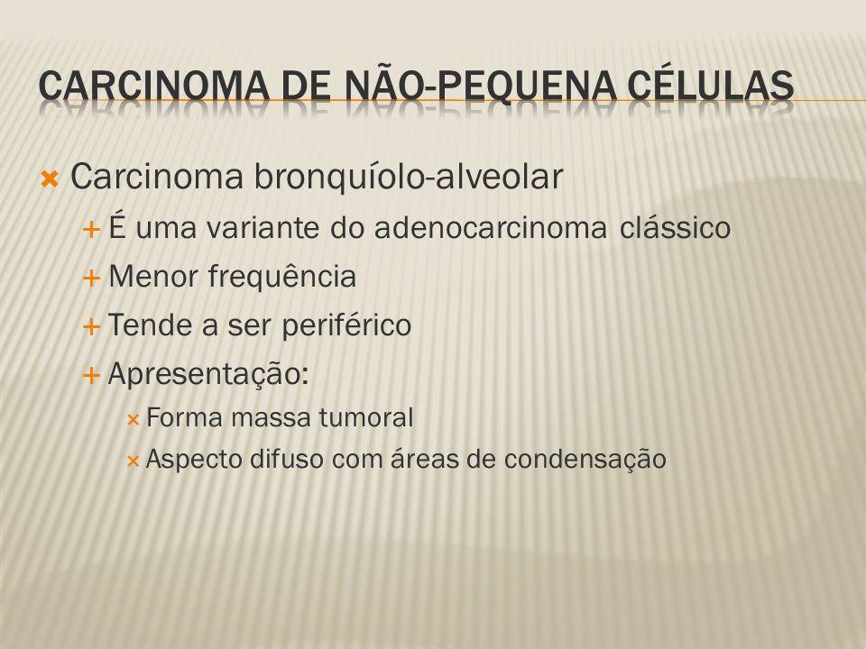 Carcinoma bronquíolo-alveolar É uma variante do adenocarcinoma clássico Menor frequência Tende a ser periférico Apresentação: Forma massa tumoral Aspecto difuso com áreas de condensação