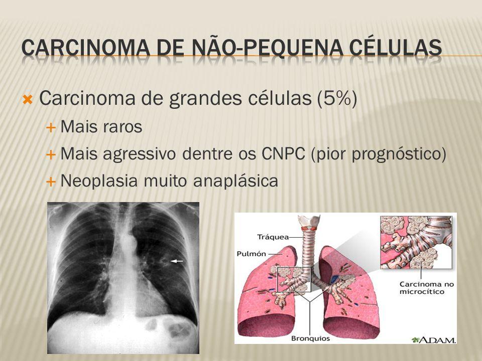 Carcinoma de grandes células (5%) Mais raros Mais agressivo dentre os CNPC (pior prognóstico) Neoplasia muito anaplásica