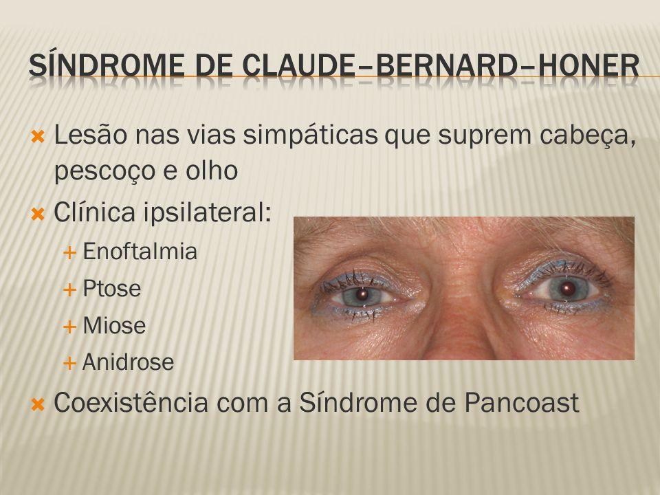 Lesão nas vias simpáticas que suprem cabeça, pescoço e olho Clínica ipsilateral: Enoftalmia Ptose Miose Anidrose Coexistência com a Síndrome de Pancoast