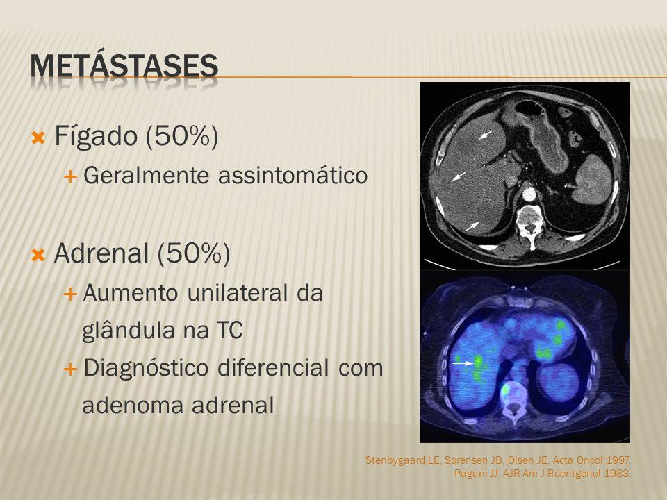 Fígado (50%) Geralmente assintomático Adrenal (50%) Aumento unilateral da glândula na TC Diagnóstico diferencial com adenoma adrenal Stenbygaard LE, Sørensen JB, Olsen JE.