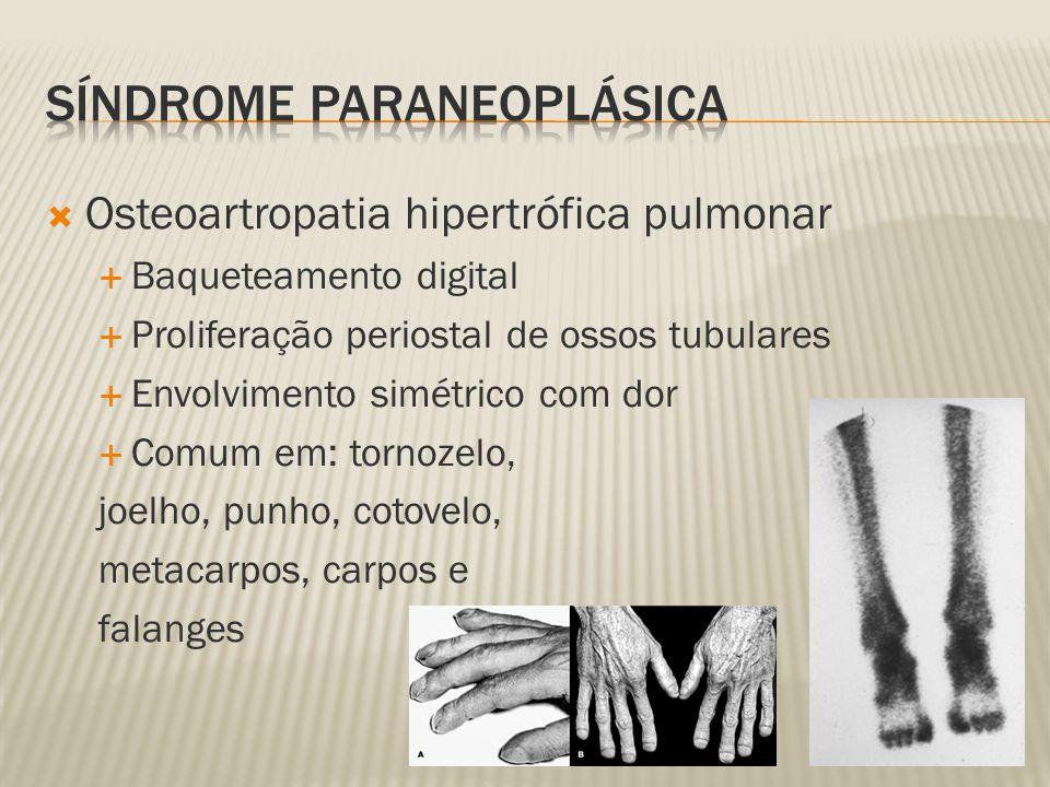 Osteoartropatia hipertrófica pulmonar Baqueteamento digital Proliferação periostal de ossos tubulares Envolvimento simétrico com dor Comum em: tornozelo, joelho, punho, cotovelo, metacarpos, carpos e falanges
