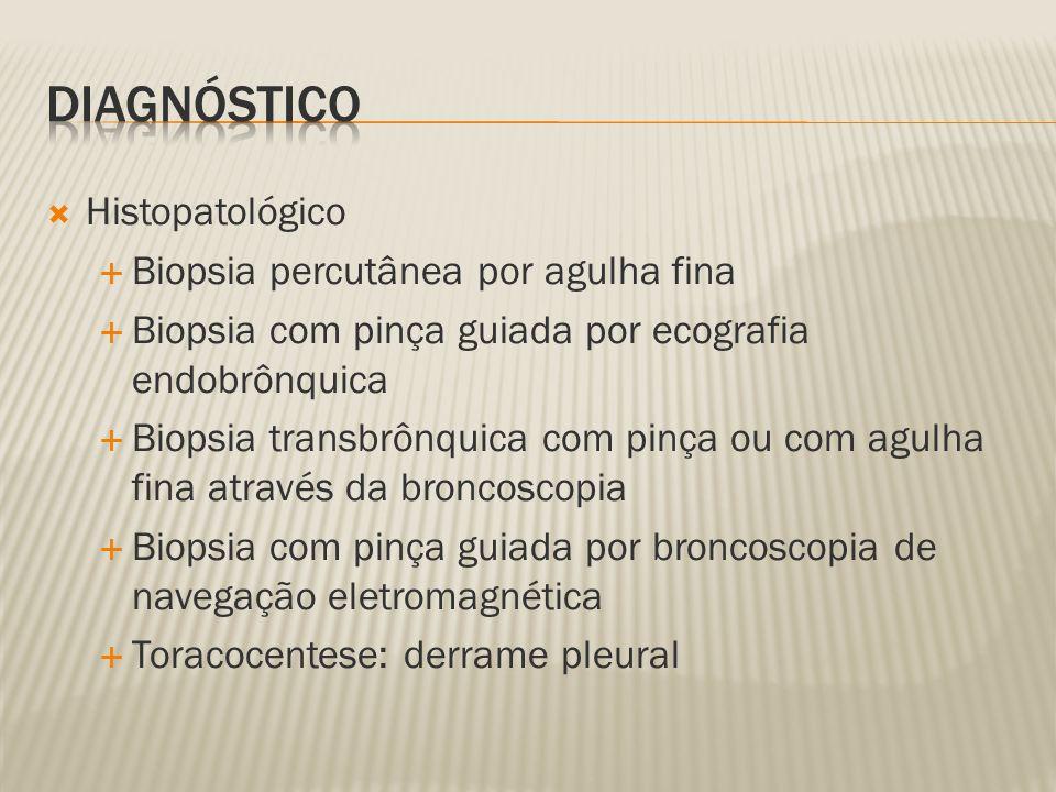 Histopatológico Biopsia percutânea por agulha fina Biopsia com pinça guiada por ecografia endobrônquica Biopsia transbrônquica com pinça ou com agulha fina através da broncoscopia Biopsia com pinça guiada por broncoscopia de navegação eletromagnética Toracocentese: derrame pleural