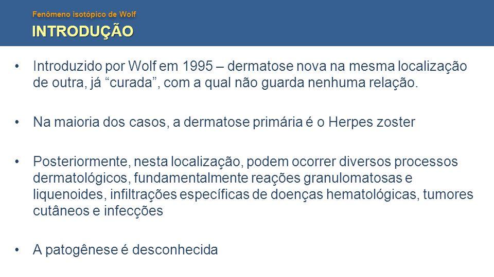 Fenômeno isotópico de Wolf Vírus Herpes Fibras nervosas sensitivas Desregulação imune Angiogênese Sarcoma Kaposi Angiossarcoma Sarcoma Kaposi Angiossarcoma Imunossupressão Hiperreatividade TNF-α Hiperreatividade TNF-α Dermatites granulomatosas liquenoides Dermatites granulomatosas liquenoides Neoplasias Infecções Neoplasias Infecções resposta imune frente ao Herpes Zoster formação e manutenção de granuloma TNF INTRODUÇÃO