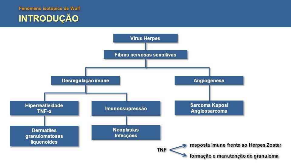 Fenômeno isotópico de Wolf Vírus Herpes Fibras nervosas sensitivas Desregulação imune Angiogênese Sarcoma Kaposi Angiossarcoma Sarcoma Kaposi Angiossa