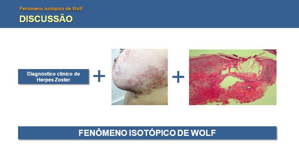 Fenômeno isotópico de Wolf DISCUSSÃO Diagnóstico clínico de Herpes Zoster + + FENÔMENO ISOTÓPICO DE WOLF