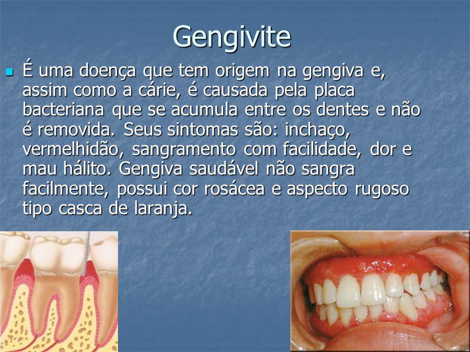 Gengivite É uma doença que tem origem na gengiva e, assim como a cárie, é causada pela placa bacteriana que se acumula entre os dentes e não é removid
