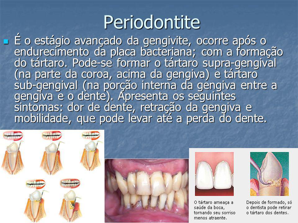 Periodontite É o estágio avançado da gengivite, ocorre após o endurecimento da placa bacteriana; com a formação do tártaro. Pode-se formar o tártaro s