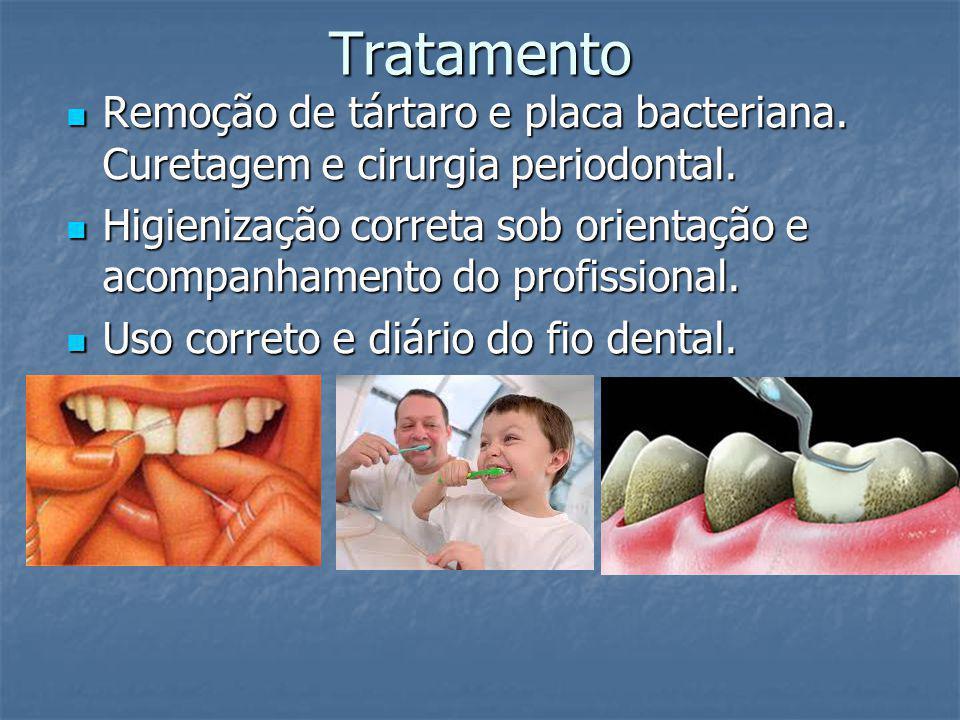 Tratamento Remoção de tártaro e placa bacteriana. Curetagem e cirurgia periodontal. Remoção de tártaro e placa bacteriana. Curetagem e cirurgia period