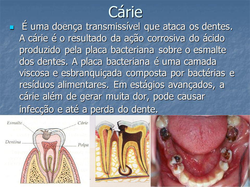 Cárie É uma doença transmissível que ataca os dentes. A cárie é o resultado da ação corrosiva do ácido produzido pela placa bacteriana sobre o esmalte