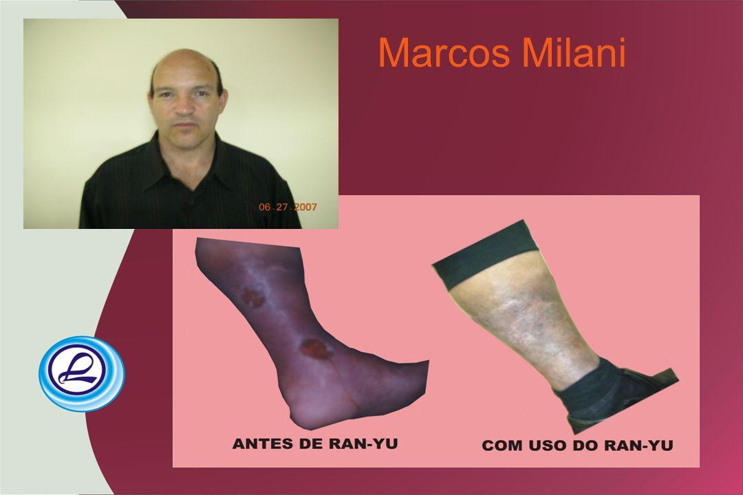 Marcos Milani
